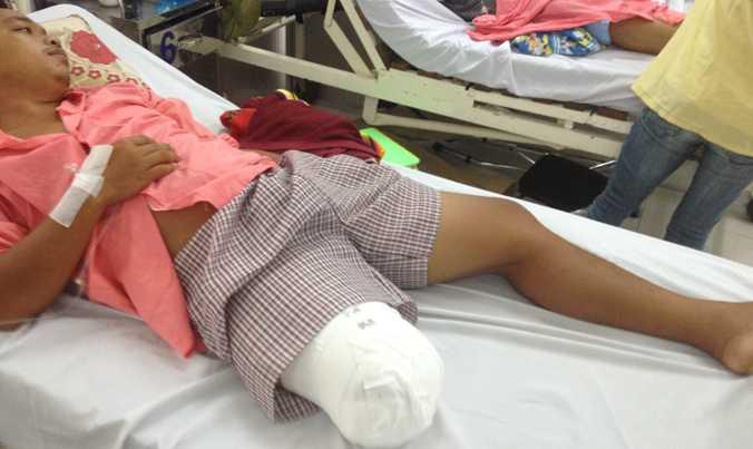 Bệnh nhân Lê Hoàng Lâm sau khi bị cắt cụt chân.