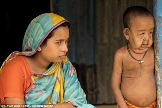 Cậu bé 4 tuổi bên cạnh mẹ. Ảnh: Cover Asia Press