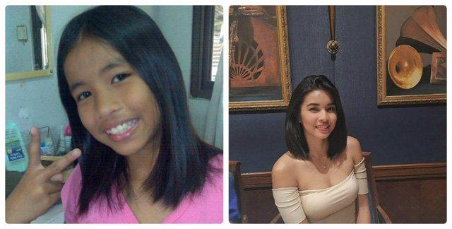 Đen nhẻm hóa hot girl, cô gái đen nhẻm, vịt hóa thiên nga, Aleksis Corbi, hot girl philippines, sinh viên 19 tuổi, hot girl, gái xinh, người đẹp, hành trình làm đẹp, làm đẹp, phụ nữ, thời trang, vtc, 24h, vtc.vn - 3