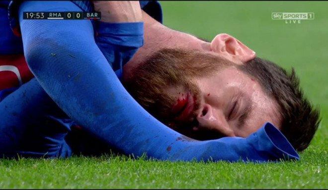 Messi nho ra chiec rang bi gay trong duong ham Bernabeu hinh anh 1