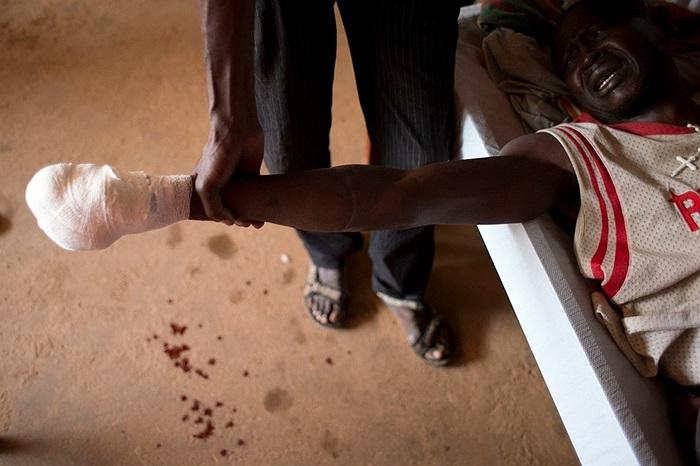 Người đàn ông bị thương Bangui, Cộng hòa Trung Phi