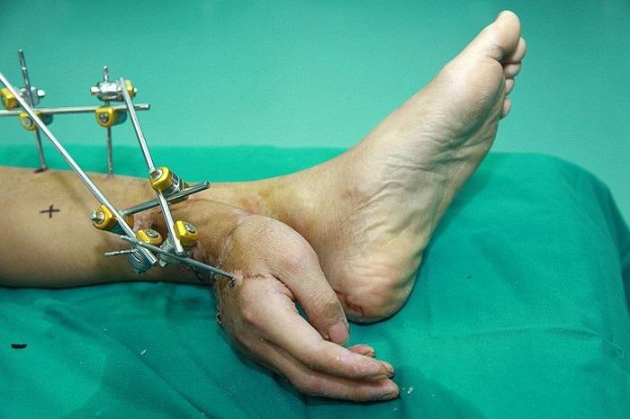 Bàn tay một công nhân bị đứt do tai nạn lao động ở Hồ Nam, Trung Quốc được các bác sĩ cấy vào chân, chờ ghép