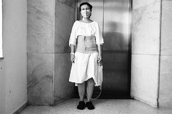 Hình ảnh bệnh nhân sau khi được cấy ghép quả thận mới.