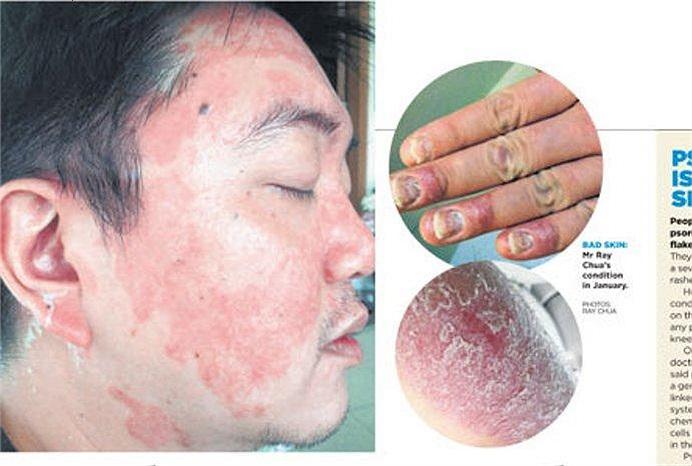 Anh Ray Chua, 39 tuổi, ngụ tại Singapore, mắc một căn bệnh về da nghiêm trọng khiến nhiều người, trong đó có bạn bè của anh, phải xa lánh, sợ hãi.