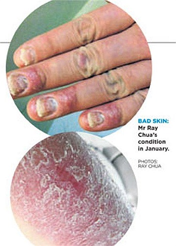 Được biết, chàng trai này mắc bệnh vẩy nến, một căn bệnh về da được gây ra do các tế bào da phát triển quá nhanh, trở nên dày và tạo thành những mảng đỏ trên khắp cơ thể.