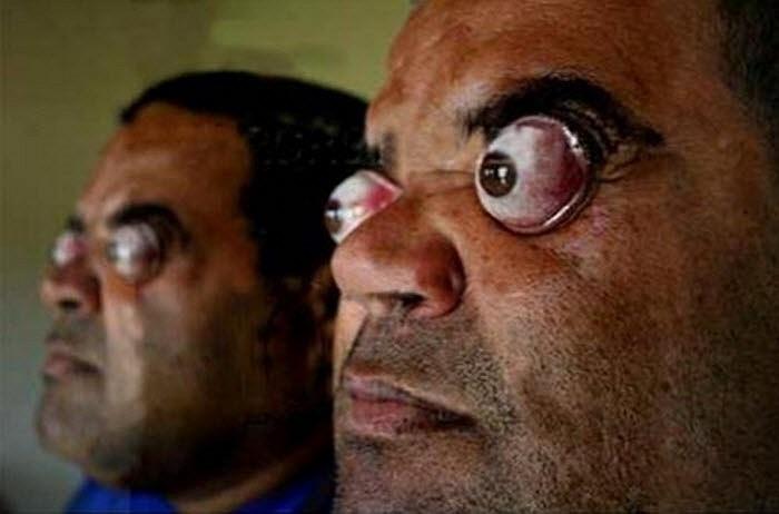 Claudio Pinto, người Brazil, có khả năng lồi cặp mắt ra ngoài hốc mắt 4 cm (khoảng 95% con mắt).