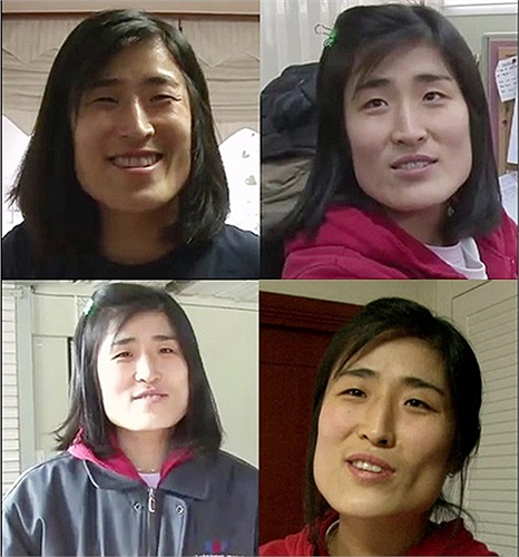 Huyn Jang Jin 33 tuổi, người Hàn Quốc trước phẫu thuật