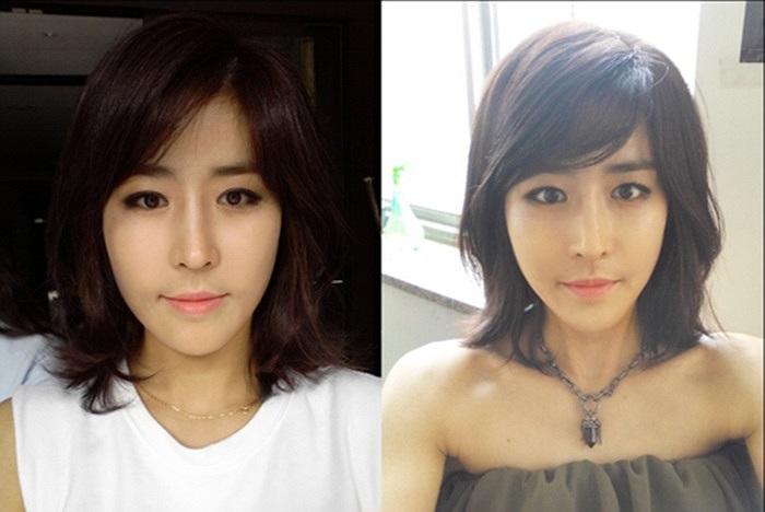 Huyn Jang Jin quá xinh đẹp sau phẫu thuật thẩm mỹ