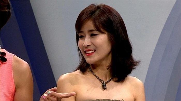 Kinh ngạc vẻ đẹp hoàn hảo của Huyn Jang Jin sau phẫu thuật