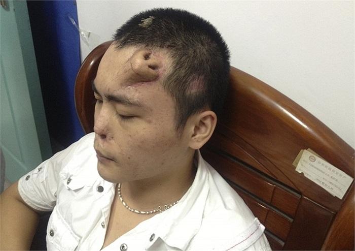 Bệnh nhân được cấy mũi vào trán trước khi phẫu thuật thay mũi ở Phúc Kiên, Trung Quốc