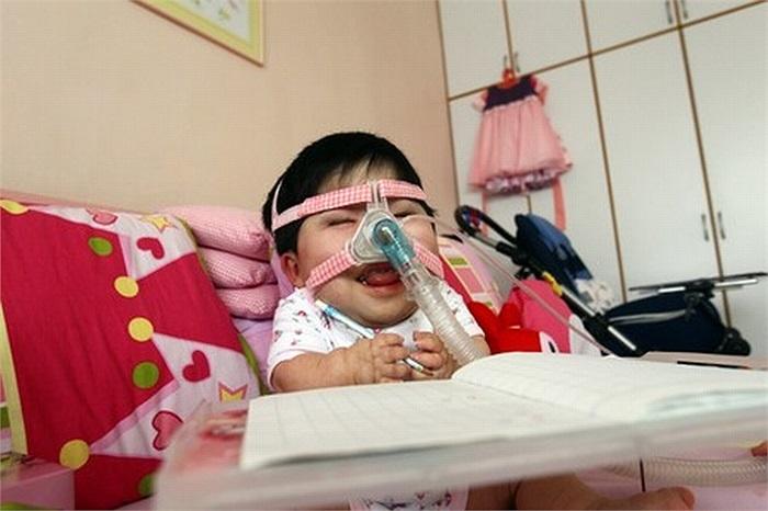 Các bác sĩ vẫn chưa thể chẩn đoán nguyên nhân gây ra tình trạng chậm phát triển như thế ở Pei Shan.