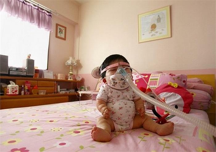 Bé Pei Shan chào đời và phát triển bình thường giống như bất kỳ đứa trẻ nào khác.