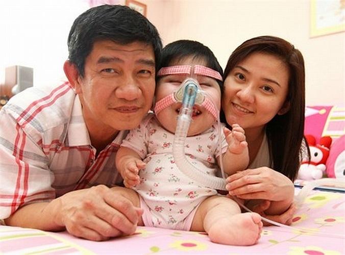 Tuy nhiên, khi được 3 tháng tuổi, cô bé Pei Shan bắt đầu ngừng phát triển.