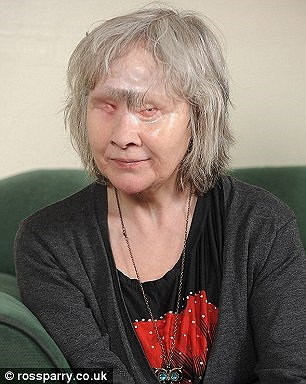 Sau khi bị ngã và mất mắt, khuôn mặt cũng biến dạng, bà đã không còn động vào một giọt rượu nào.