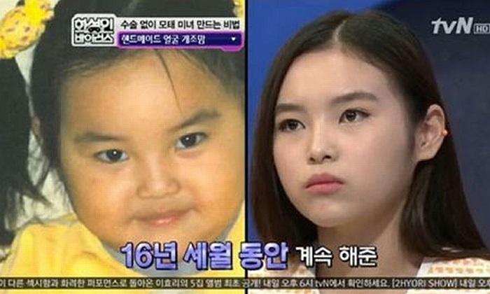 Một bà mẹ Hàn Quốc đã mát-xa khuôn của con gái bằng tay và hai cái thìa trong suốt 16 năm qua.