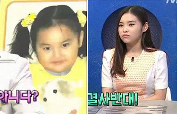 Hình ảnh hồi nhỏ và hiện tại của cô gái.