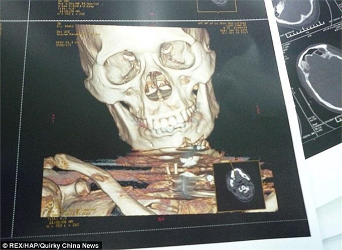 Anh Long Chao, 40 tuổi ở Tứ Xuyên - Trung Quốc, đã sống sót kỳ diệu sau khi bị 7 thanh kim loại bắn xuyên qua cổ và họng.