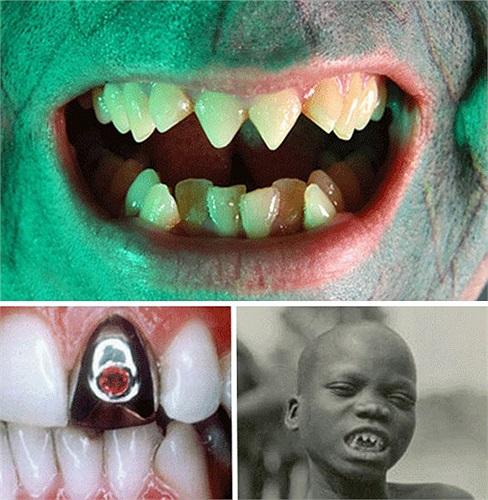 Phụ nữ ở một số cộng đồng nông thôn tại Indonesia được xem là xinh đẹp và hấp dẫn nếu họ chịu mài nhọn răng.Nghi thức mài răng được thực hiện mà không có thuốc giảm đau hay hoặc thuốc gây tê.
