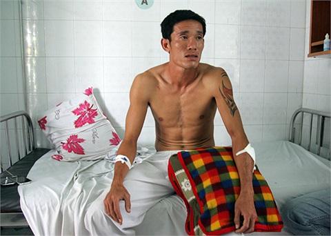 Chí Công bị chém ở gần khu vực phòng trà Đêm Màu Hồng ở Thủ Dầu Một, Bình Dương khi đang trên đường trờ về từ sân bóng mini.