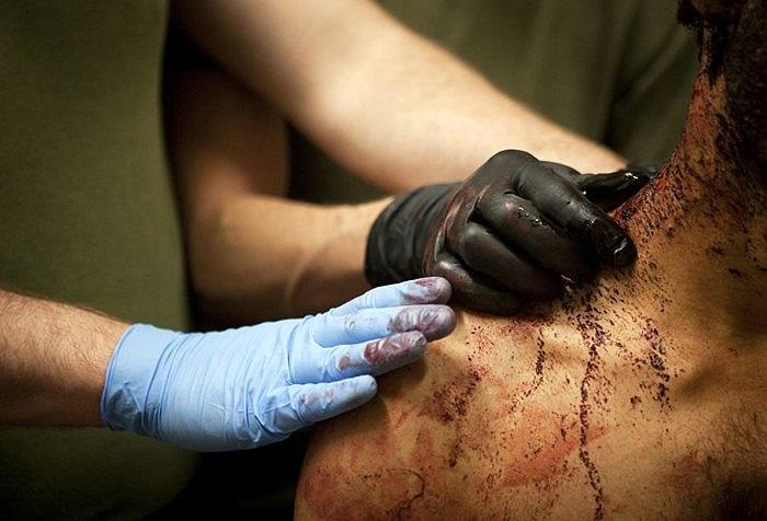Điều trị vết thương cho một binh sĩ Lực lượng lính thủy đánh bộ Mỹ