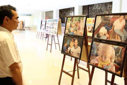 nạn nhân da cam, dioxin, triển lãm, thảm họa