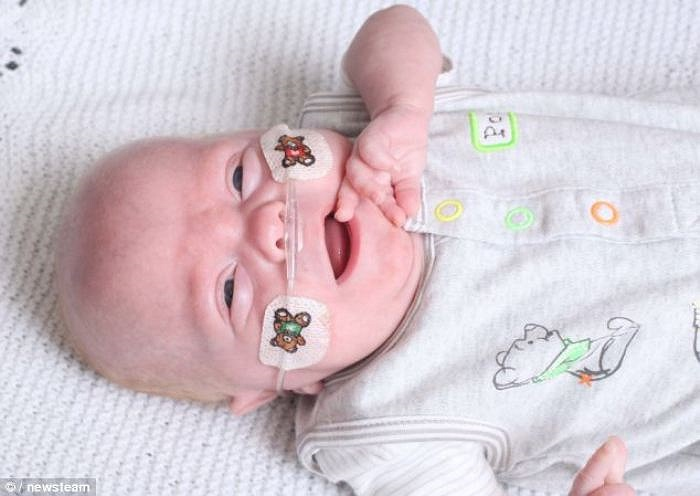Bé Finley Devonshire, ngụ tại Anh, đã được xuất viện sau năm tháng chào đời với cân nặng chỉ 425 gram, nhẹ hơn cả một túi đường.