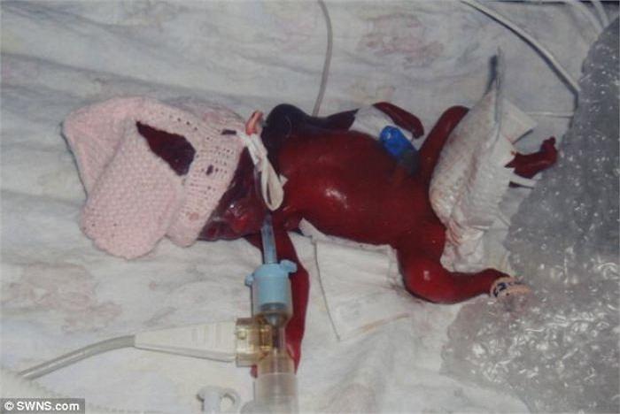 Tuy nhiên, anh chị vẫn quyết định đối mặt thử thách và quyết định sinh con, mặc cho bác sĩ thông báo em bé chỉ có 10% cơ hội sống sót. Trong ảnh là bé Finley lúc vừa chào đời.