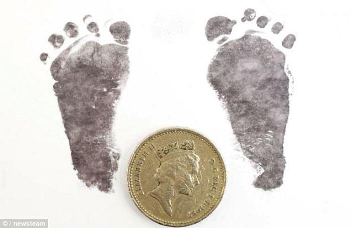 Hình ảnh so sánh bàn chân của bé Finley, nó quá bé đến nổi chỉ to hơn gấp đôi đồng xu 1 bảng.