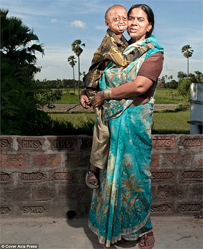 Cô Razia, 46 tuổi, mẹ của Ali cho biết, vợ chồng cô có 8 người con, nhưng 6 đứa đều mắc căn bệnh Progeria.