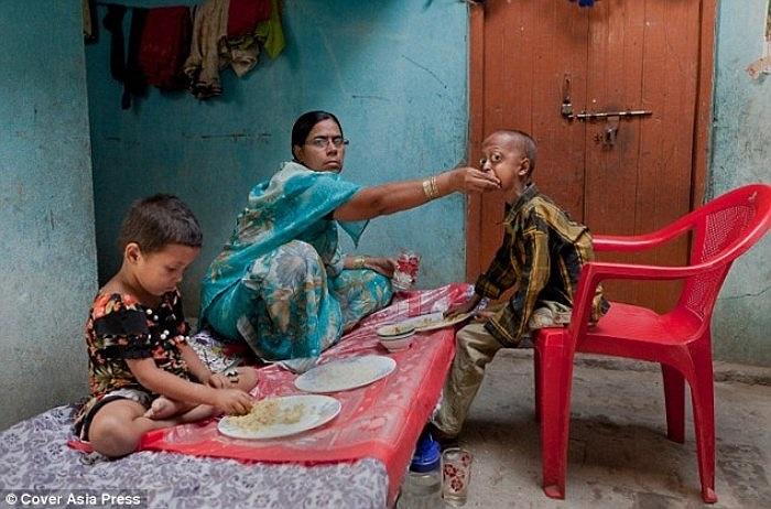 Trong ảnh là cảnh cô Razia đút cơm cho Ali ăn. Căn bệnh ảnh hưởng đến nhiều bộ trên cơ thể của bé, trong đó có xương, mắt, tim và tóc.