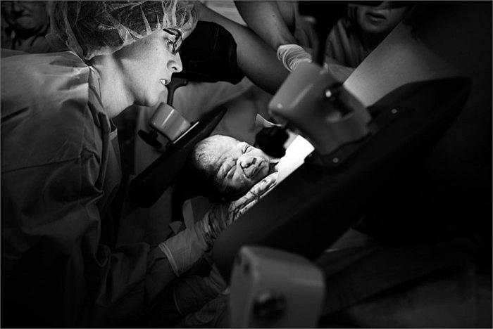 Tại các cơ sở y tế hiện nay, phụ nữ sinh nở ở tư thế nằm ngửa trên bàn đẻ. Cũng có một số tư thế khác giúp người mẹ rặn đẻ dễ dàng hơn như quỳ hoặc ngồi tựa vào người khác.