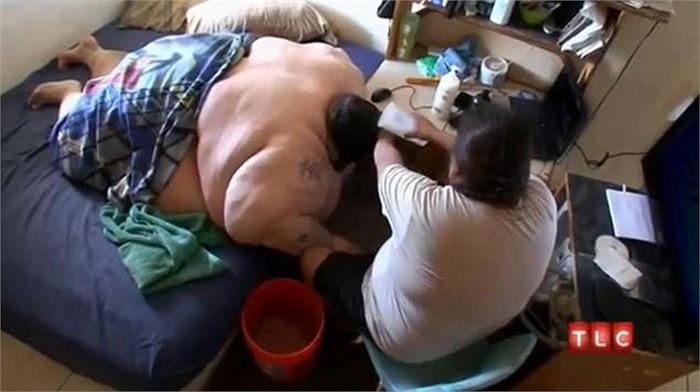 Anh đã cầu cứu để có một cuộc phẫu thuật giảm béo. Nhưng trước khi thực hiện cuộc phẫu thuật này, anh phải giảm trọng lượng để có thể bay vào đất liền.