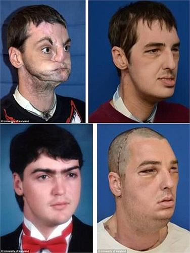 Đây là những hình ảnh đáng kinh ngạc về Richard Lee Norris trước và sau khi trải qua ca phẫu thuật cấy ghép mặt.