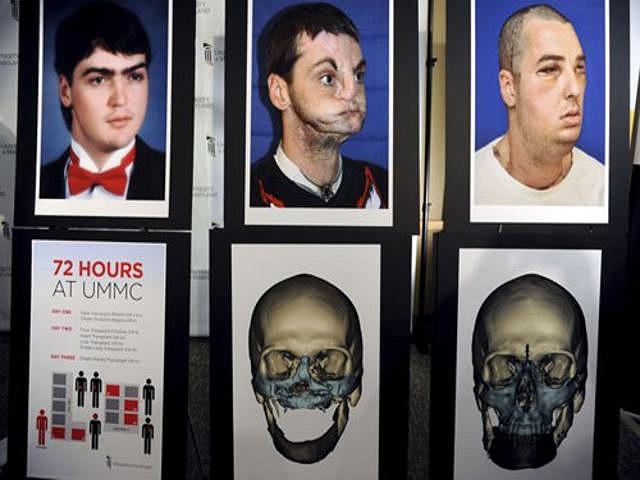 Anh Norris, người bị thương trong một tai nạn súng năm 1997, đã được chụp ảnh 7 tháng sau khi cuộc đại phẫu thuật kéo dài 36 giờ đồng hồ tại Bệnh viện Đại học Maryland nhằm tái tạo cho anh một khuôn mặt, hàm răng và lưỡi mới.