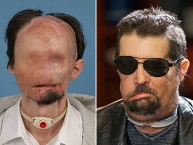 Wiens, 27 tuổi, đến từ Texas, đã bị biến dạng mặt mày năm 2008 sau tai nạn tiếp xúc với một đường dây điện cao thế. Khi được chuyển bằng trực thăng tới bệnh viện Parkland Memorial, các bác sĩ đã tiến hành 36 giờ đồng hồ phẫu thuật trong 2 ngày.