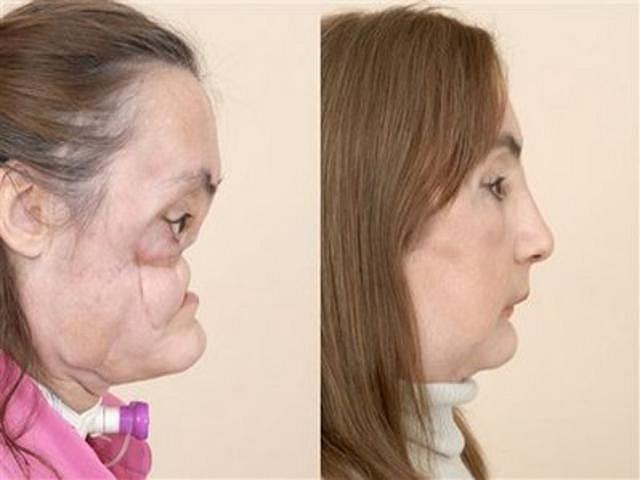 Connie Culp, 46 tuổi, đến từ Ohio là người đầu tiên trải qua phẫu thuật cấy ghép mặt ở Mỹ sau khi bị chồng bắn vào năm 2004. Tổng cộng, Culp đã phải trải qua 30 ca phẫu thuật.