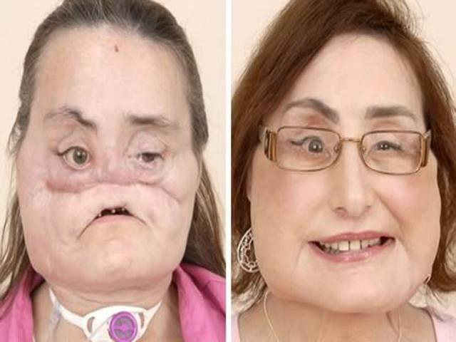 Các bác sĩ đã lấy một phần các xương sườn của cô để tạo xương gò má và tạo hình hàm răng trên từ một xương chân của cô. Culp cũng được cấy ghép vô số mảng da lấy từ đùi. Diện mạo mới của cô khác xa khuôn mặt nhàu nát, không mũi khiến trẻ em kinh hãi