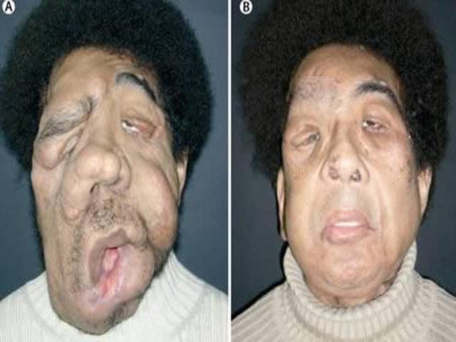 Khuôn mặt của Coler đã bị biến dạng thảm hại vì căn bệnh Von Recklinghausen, một rối loạn về gen hiếm gặp. Năm 2008, một nhóm phẫu thuật Pháp do giáo sư Laurent Lantieri đứng đầu, đã thực hiện ca phẫu thuật kéo dài 16 giờ đồng hồ để tái tạo mặt Von.