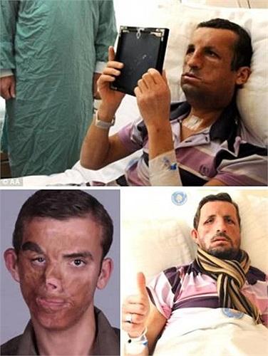 Ugur Acar, 19 tuổi tại Thổ Nhĩ Kỳ bị bỏng nghiêm trọng trong một vụ cháy nhà khi mới được 40 ngày tuổi. Năm 2012, cậu thiếu niên này đã trải qua cuộc phẫu thuật tại Đại học Y khoa Thổ Nhĩ Kỳ, tái tạo thành công khuôn mặt từ người hiến tặng 45 tuổi.