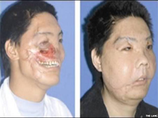 Người đàn ông Trung Quốc 30 tuổi bị tấn công bởi một con gấu hồi tháng 10/2004, khiến khuôn mặt bị biến dạng hoàn toàn. Năm 2006, các bác sĩ thuộc trường Đại học Quân y ở Tây An, Thiểm Tây, TQ đã phẫu thuật tái lại khuôn mặt trong 18 giờ.