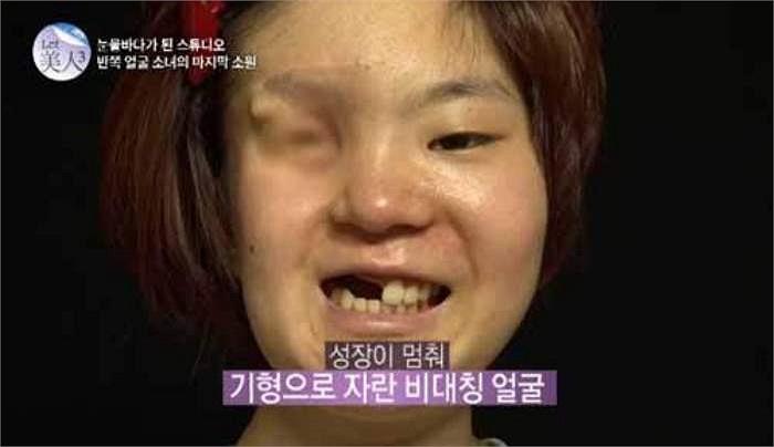 Việc này đã ảnh hưởng tới cấu trúc xương mặt và làn da của cô. Kể từ đó, khuôn mặt Ga Hee bị biến dạng và mất cân xứng, chỉ có bên mặt không hóa trị là phát triển bình thường.