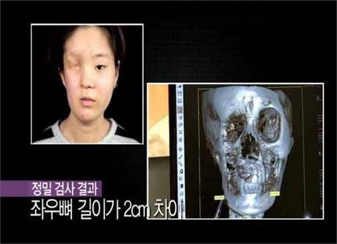 Hình chụp xương mặt của cô gái trẻ.