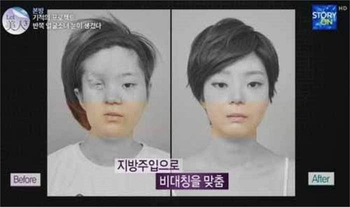 Hình ảnh trực diện khuôn mặt trước và sau khi phẫu thuật thẩm mỹ.