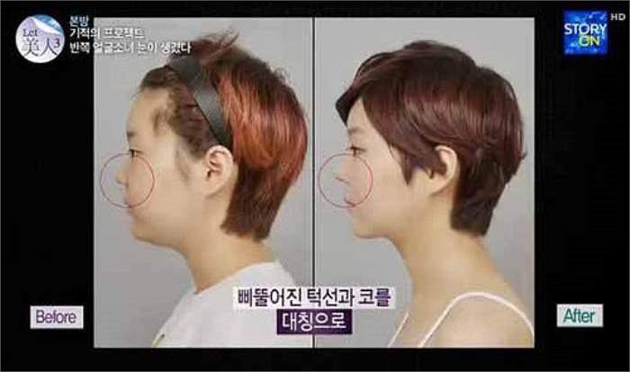 Hình ảnh nhìn nghiêng khuôn mặt trước và sau khi phẫu thuật thẩm mỹ.