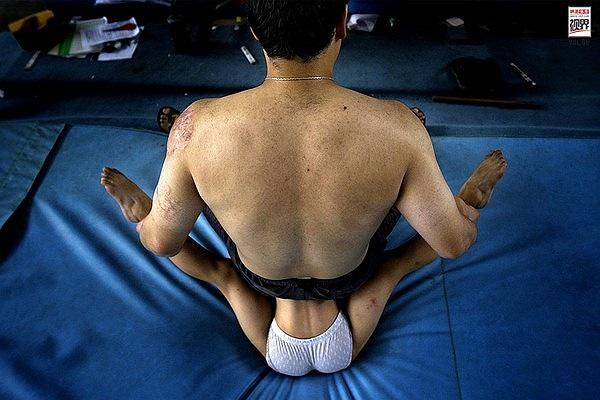Thể dục dụng cụ là môn thể thao đòi hỏi sự dẻo dai của cơ thể. Do đó, những VĐV nhí phải tập uốn dẻo từ nhỏ, đồng thời, phải hạn chế chiều cao để đạt chuẩn
