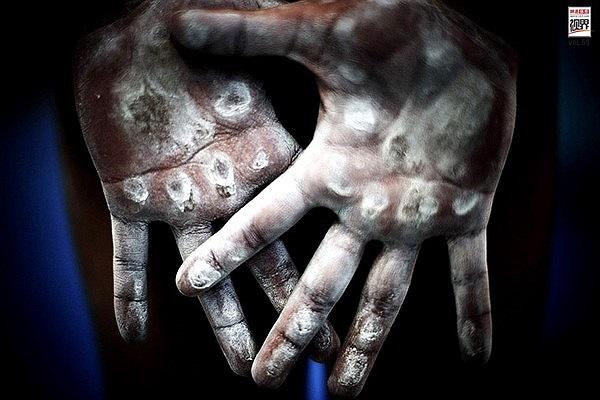 Vết chai sần trên đôi tay những VĐV Thể dục dụng cụ