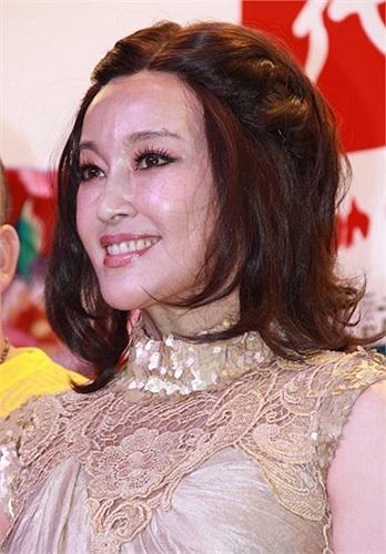 Lưu Hiểu Khánh từng nhiều lần đối mặt với tin đồn phẫu thuật thẩm mỹ.