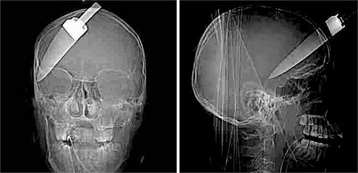 Nạn nhân của một vụ cướp tại London, Anh. Dù bị găm cả 1 con dao vào đầu nhưng không thiệt mạng.