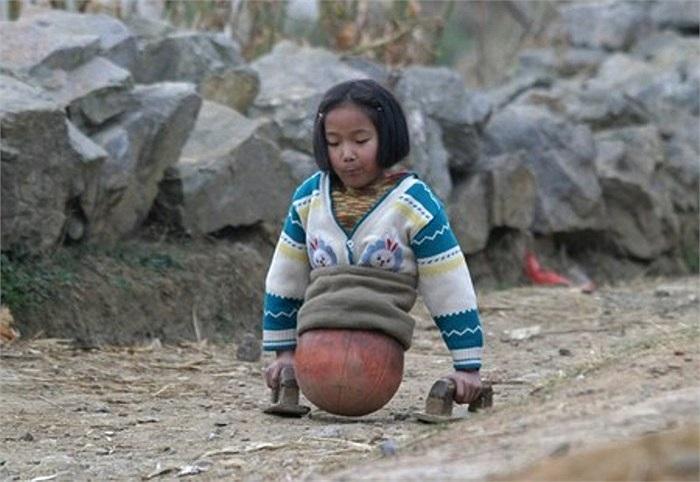 Được biết, một tai nạn giao thông kinh hoàng ập đến với Hongyan năm em lên 4 tuổi, khiến em mất đi đôi chân của mình.