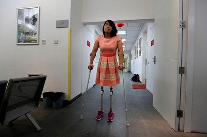 Hongyan đang tập làm quen với đôi chân giả mới.